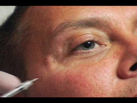 Oil ay, wrinkles sa ilalim ng mga mata