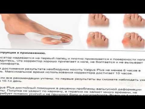 Гелевые фиксаторы при деформации большого пальца стопы