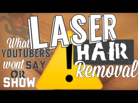 Complete Bikini Laser Hair Removal Review | VISUAL | What others WONT show!