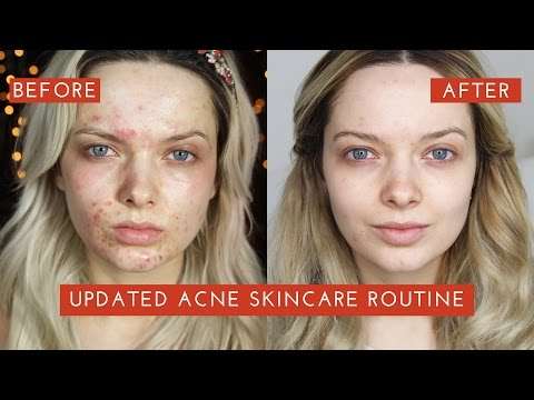 UPDATED ACNE SKINCARE ROUTINE: How I cleared my Acne // MyPaleSkin