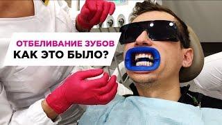 MUSIN EVERYDAY | Отбеливание зубов мой опыт, ответы врача, почему бывает больно!