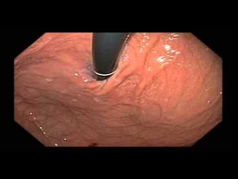Hill Grade III/Grade IV Gastroesophageal Valve