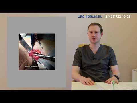 Как выявить варикоцеле, операции при варикоцеле