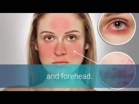 Laser- die Abtragung der Pigmentation auf der Person die Rezensionen