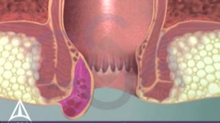 Thrombosed External Hemorrhoid - 3D Medical Animation