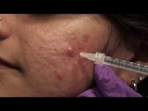 Prezzi osteocondrosi cervicale sanatorio per il 2015 con il trattamento