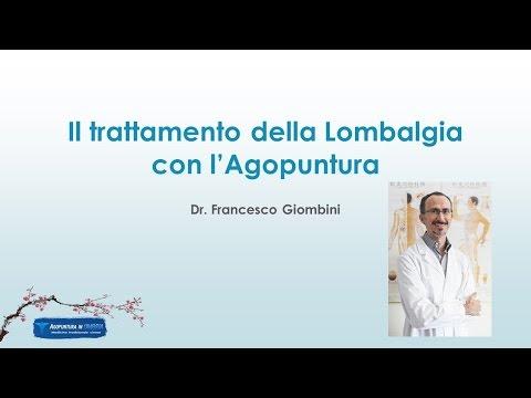 Disfunzione dellarticolazione temporomandibolare ICD-10 giunto