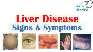 Liver Disease Signs & Symptoms (ex. gynecomastia, bruising) | Hepatic Stigmata