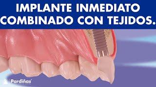 Implante inmediato combinado con injertos de tejidos duros y blandos © - Clínica Dental Pardiñas