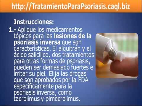 Es curada la psoriasis o no a los niños
