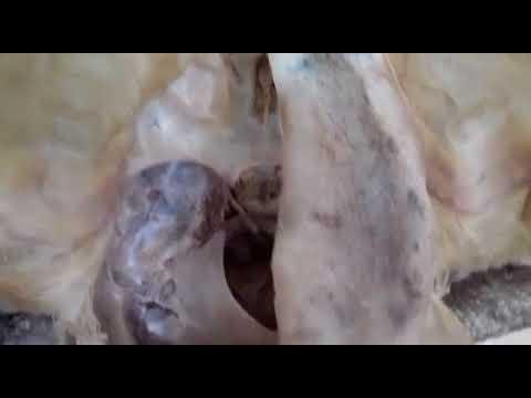 Prostata und Hoden