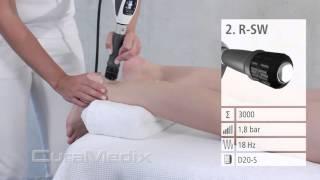 CuraMedix EPAT Treatment of Posterior Heel Pain