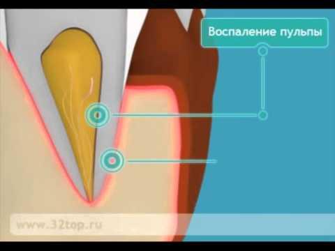 Периостит - флюс. Лечение периостита. Периостит челюсти