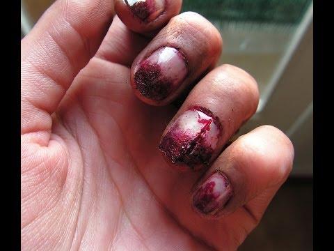 La faction asd 3 application du microorganisme végétal des ongles