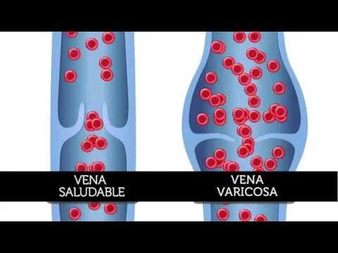 Le linge de compression les golfs à la varicosité