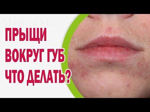 Пигментация на лице лечение мезотерапией