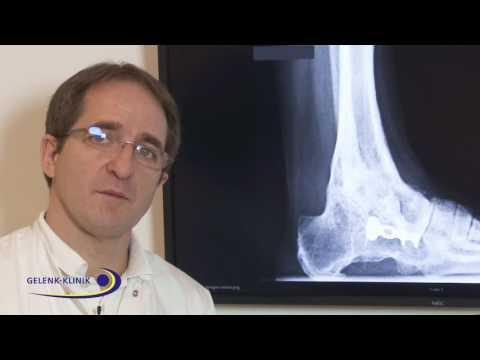 Behandlung der Osteochondrose in Kostanay