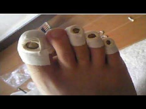Die Krankheit des Nagels des Daumens des Beines die Behandlung