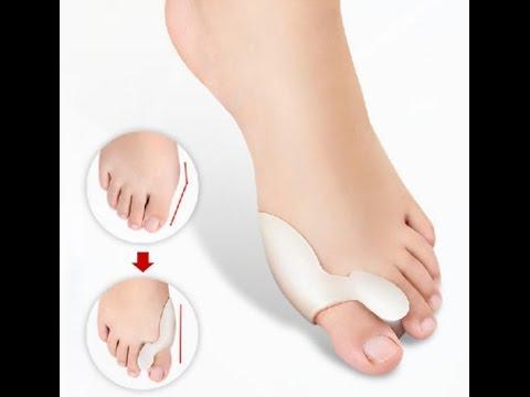 Шишка на ногах у маленького пальца