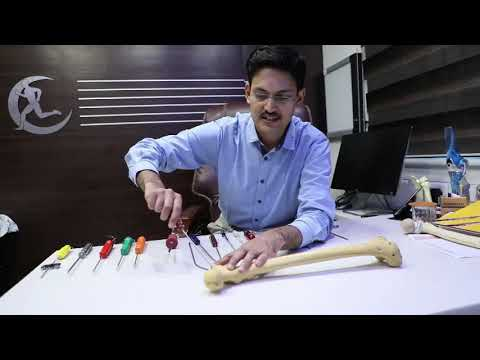 Cum să tratezi artrita reumatoidă a gleznei