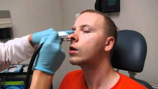 Septoplasty Nasal Splint (Packing) removal and nose cleaning