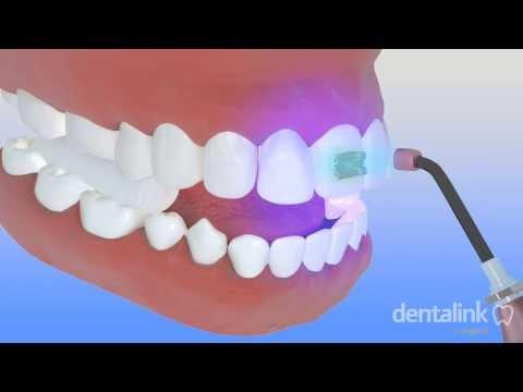 Cementación brackets ortodoncia
