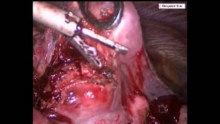 Торакоскопическоей удаление метастаза легкого. Thoracoscopic enucleation of lung metastases.