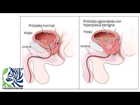 Resultados del tratamiento del cáncer de próstata