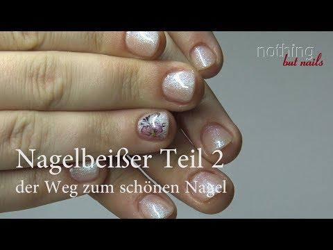 Wie die Entzündung des Nagels des Fingers des Beines zu behandeln