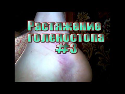 Растяжение голеностопа #3