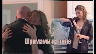❖ Шрамами на теле.. | Вера Кобзарь & Сергей Кияшко
