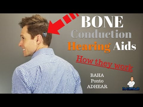 How Bone Conduction Hearing Aids Work | Cochlear BAHA, Oticon Medical Ponto, Medel ADHEAR