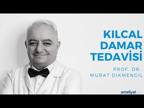Kılcal Damar Ameliyatı (Prof. Dr. Murat Dikmengil)