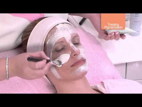 I posti di pigmentary su una faccia strisciano