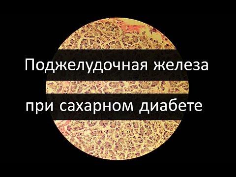 Санатории россии лечение сахарного диабета у