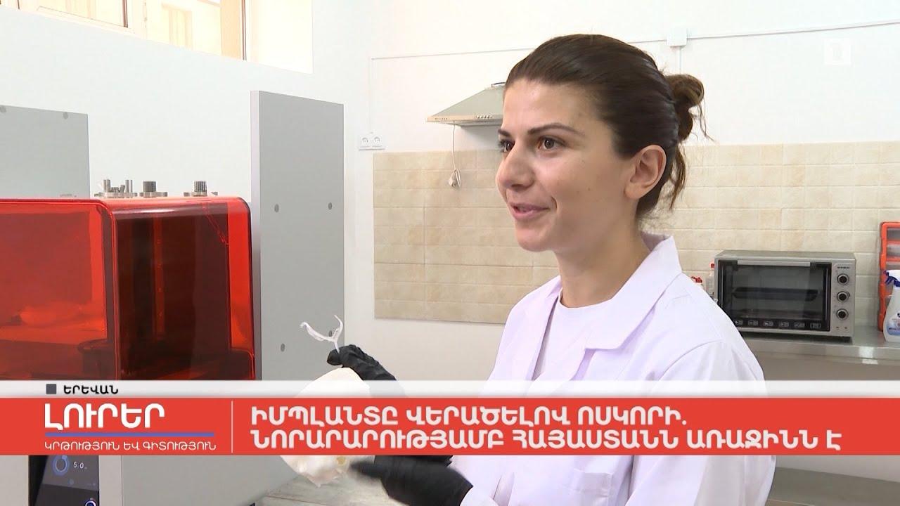 Իմպլանտը վերածելով ոսկորի․ նորարարությամբ Հայաստանն առաջինն է