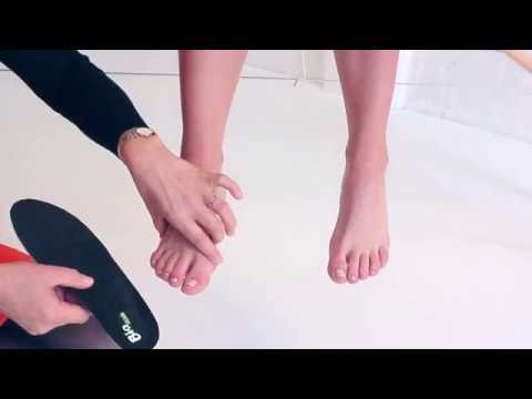 การรักษา valgus บนเท้าของเขา