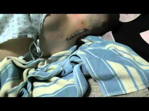 22 Woche der Schwangerschaft des Schmerzes unten des Bauches und der Lende