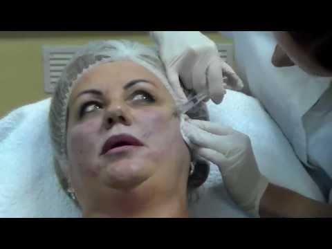 Какой крем уменьшает морщины на лице