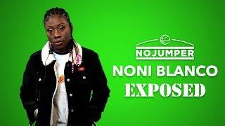 Noni Blanco Exposed!