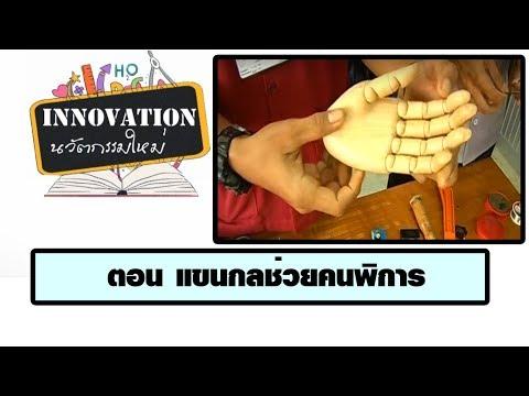 การผ่าตัดกระดูกของหัวแม่มือใน Chelyabinsk ที่