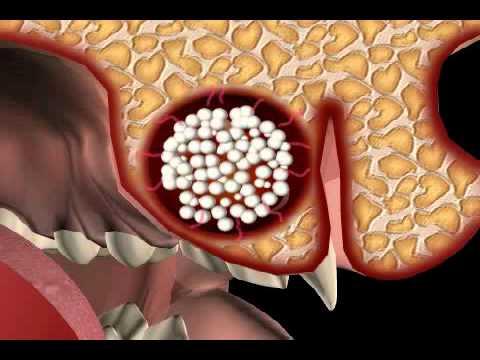 Schmerzen nach Hüft-Symptome und Behandlung