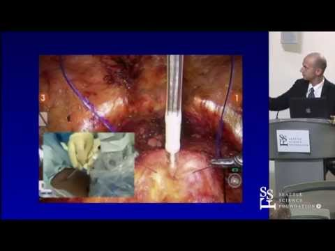 New Techniques During Robotic Prostatectomy