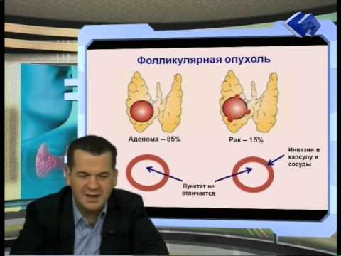 Какие снижают уровень сахара в крови