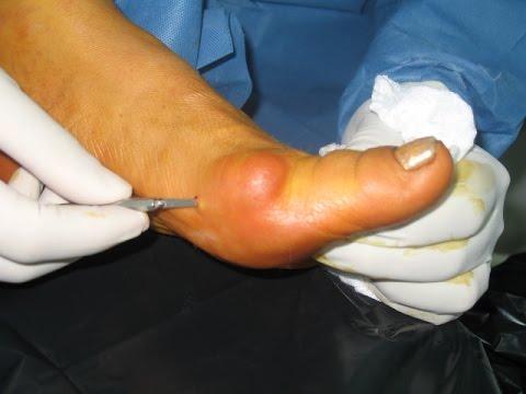 Valgus วิดีโอผ่าตัดเท้า
