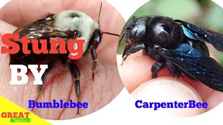 Stung By Bumble Bee And Carpenter Bee