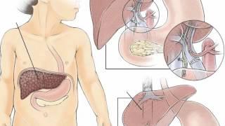 Çocuklarda Karaciğer Yetmezliğinin Nedenleri Nelerdir?