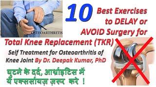 Delay/Avoid Knee Replacement TKR surgery in early age| घर पर घुटने के दर्द /आर्थ्राइटिस का इलाज।