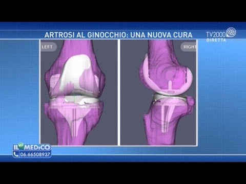 Testa hip cancellati