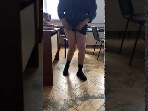 Выраженная вальгусная деформация коленного сустава